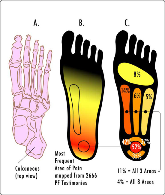 Plantar fasciitis pain locations